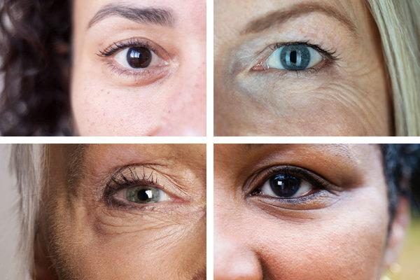 3 Ways To Reduce Puffy Red Eyes In The Morning Usemypro Com Part 2